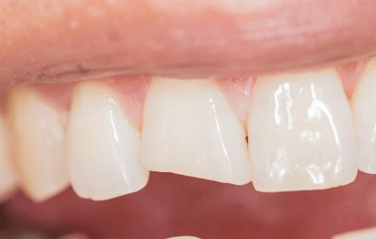 Dente rotto? Ecco cosa puoi fare! - Dental Dream Studio ...